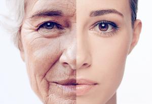 anti-aging_niche