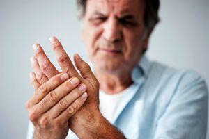 arthritis_niche